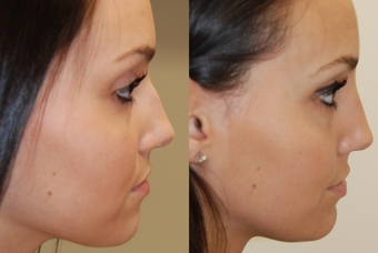 Non-surgical-nose-job-before