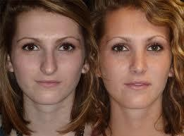 before and after deviated septum 5