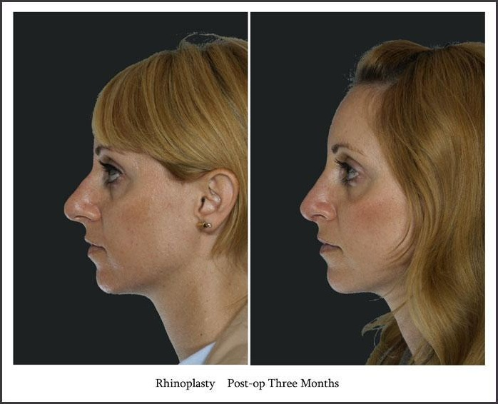 before and after rhinoplasty 3