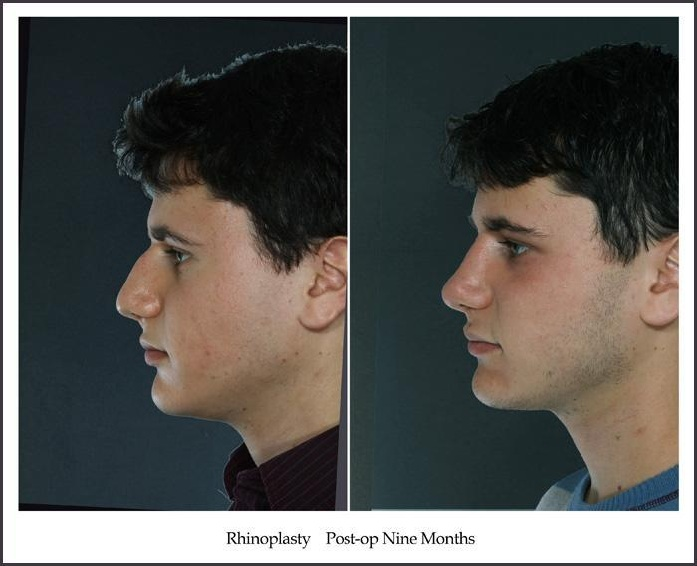 before and after rhinoplasty 4