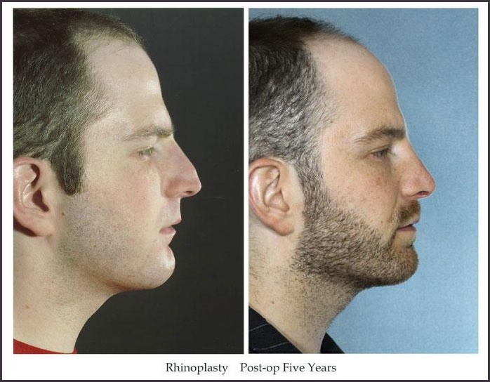 before and after rhinoplasty 5