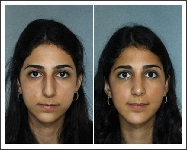 before and after rhinoplasty2