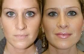 before and after septoplasty 2