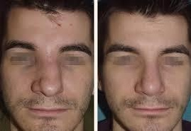 before and after septoplasty 5