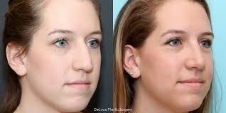 before and after septoplasty