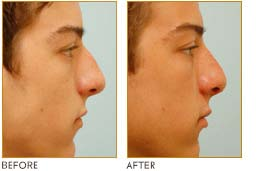 beforeand after male rhinoplasty