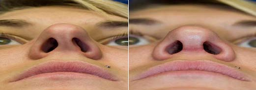 deviated septum before after