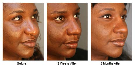 deviated septum before afterdeviated septum before after