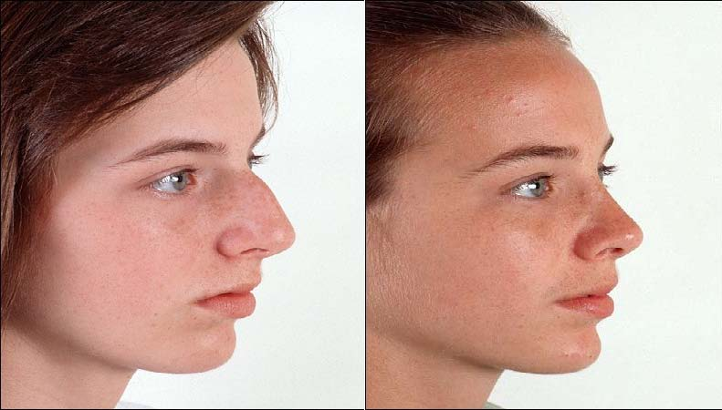 female-rhinoplasty