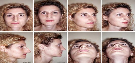 septoplasty before after